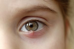 Styes resemble a small pimple on the eye, right above the eyelashes.