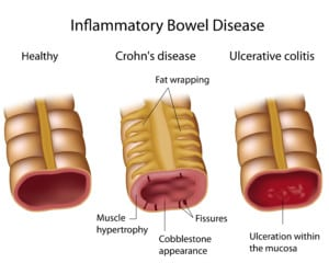 Crohn's disease is another common digestive disease